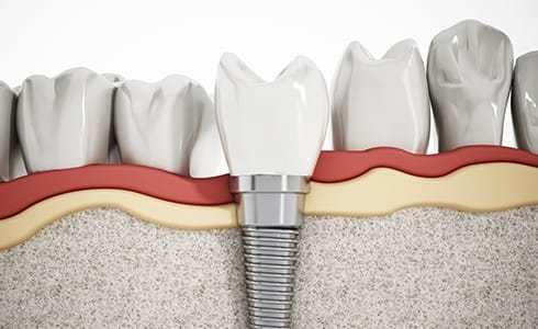Animated dental implant after placement