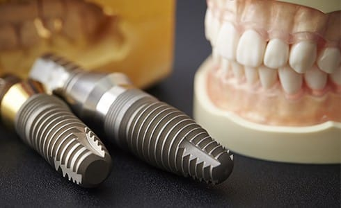 Two dental implant posts next to a smile model