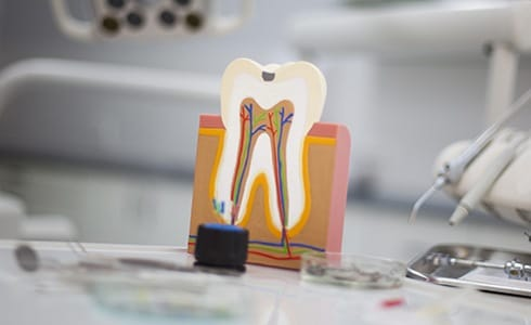 Model of the inside of healthy tooth